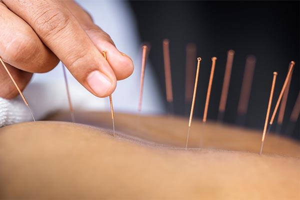 acupuncture medecine chinoise